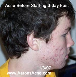 Acne before starting first 3-day fast