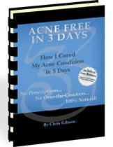 How to get rid of your acne in 3 days